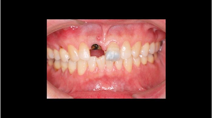 吉松歯科医院 CAD/CAM治療例1