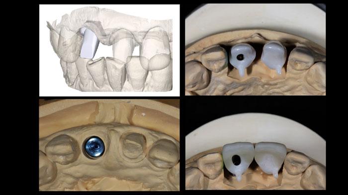 吉松歯科医院 CAD/CAM治療例4