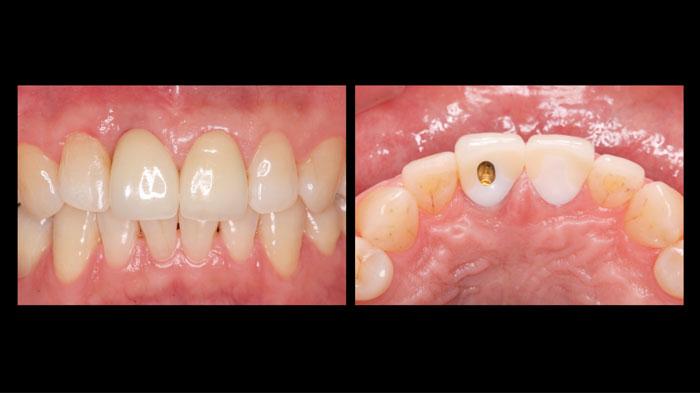 吉松歯科医院 CAD/CAM治療例5