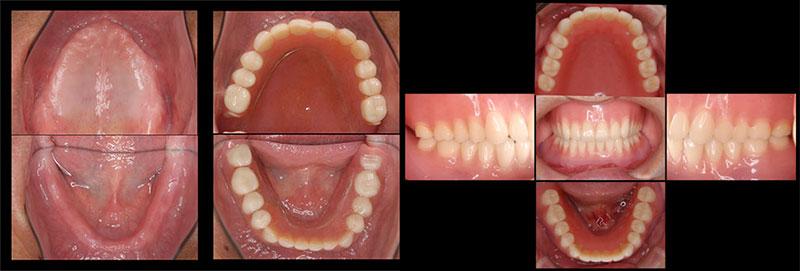 吉松歯科医院 義歯・入れ歯例1