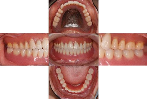 吉松歯科医院 義歯・入れ歯例2-1