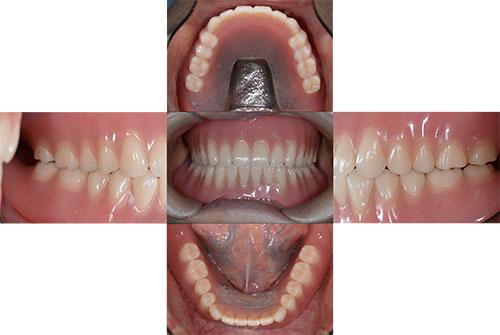 吉松歯科医院 義歯・入れ歯例2-2