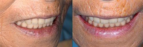 吉松歯科医院 義歯・入れ歯例2-3