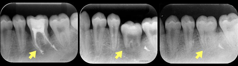 吉松歯科医院 一般歯科