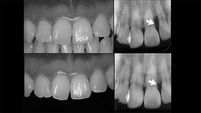 吉松歯科医院 歯周病治療